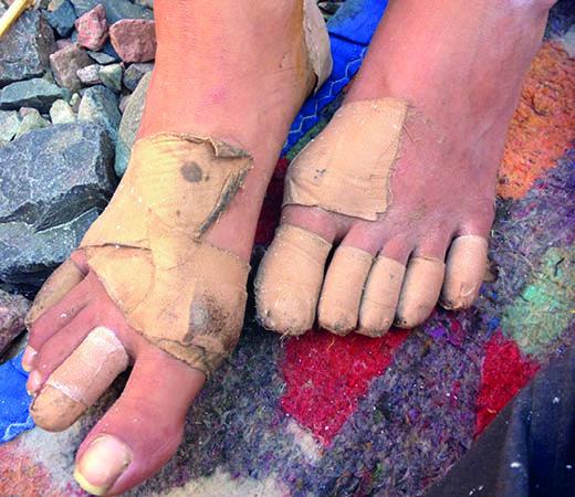 Bandaged feet in Egypt's Sinai desert