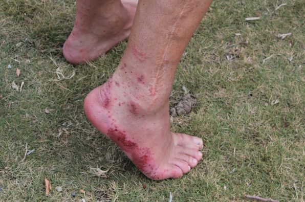 This is trench foot. The tell-tell red spots as the fungal infection sets in. Shot on expedition with Secret Compass in the Darien Gap